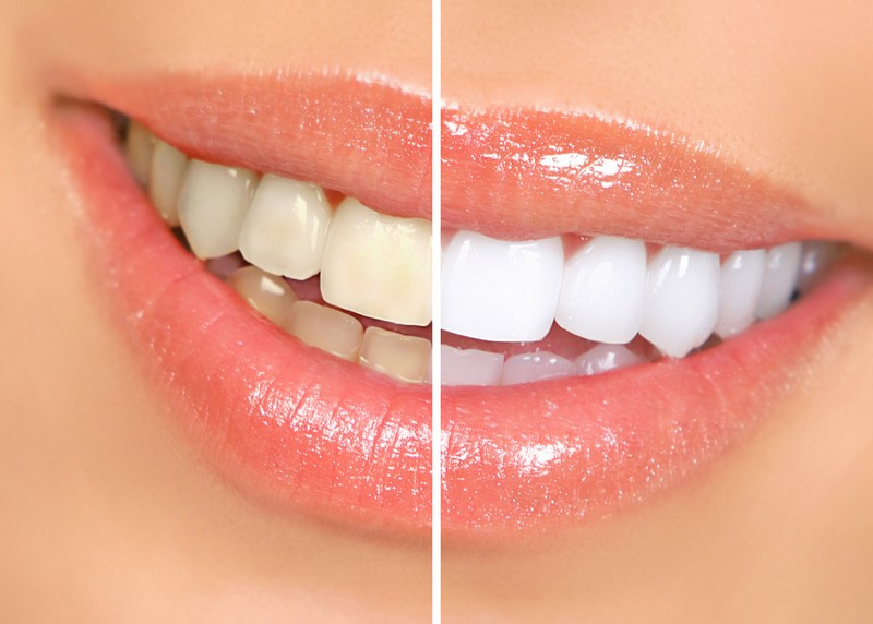 Teeth Whitening  Yorba Linda, CA